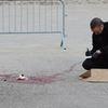 Man critical after shooting