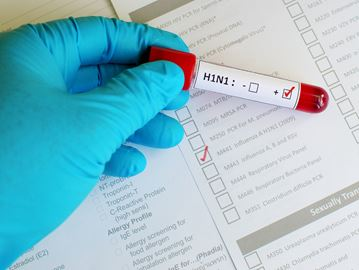 How do I know if I have H1N1?