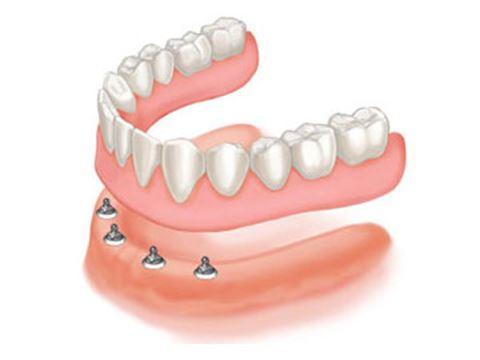 Dental Implants Will Food Get Underneath