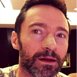 Hugh Jackman being treated for skin cancer again-Image1