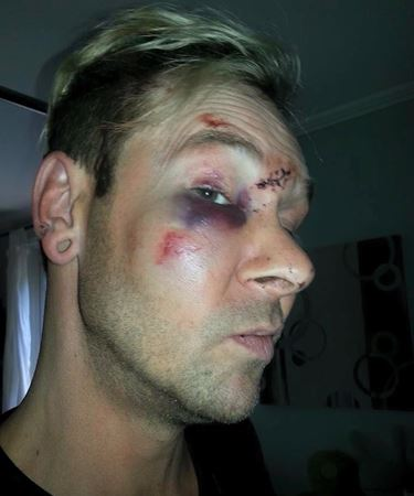 ALLEGED VICTIM OF POLICE BRUTALITY