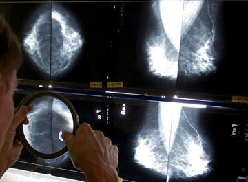 Aging population to send cancer cases soaring: report-Image1
