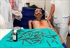 Doctors in India remove 40 knives from man's stomach-Image2