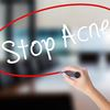 Acne scars can be minimized, or even eliminated