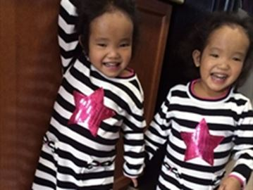 Second twin receives liver transplant-Image1