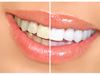 Teeth whitening services at Bronte Dental